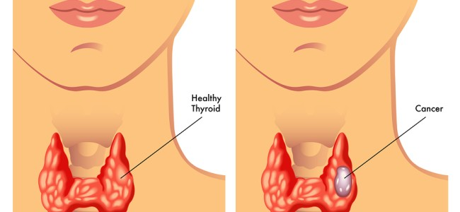 Thyroid Cancer on rise in Kashmir, more than 75% patients are female